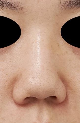鼻尖縮小、鼻中隔延長、鼻柱基部下降、I型プロテーゼ 3ヶ月後 正面のBefore写真