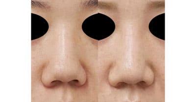 鼻尖縮小、鼻中隔延長、鼻柱基部下降、I型プロテーゼ 3ヶ月後