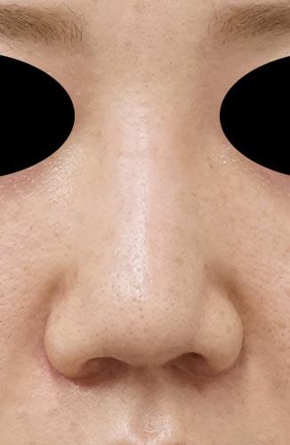 鼻尖縮小、鼻中隔延長、鼻柱基部下降、I型プロテーゼ 3ヶ月後 正面のAfterの写真