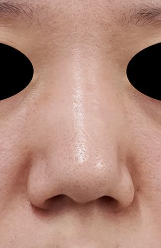 鼻尖縮小、鼻翼縮小(内側法+外側法) 6ヶ月後のBefore写真