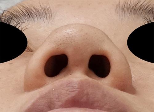 鼻尖縮小、鼻中隔延長、鼻柱基部下降、I型プロテーゼ 3ヶ月後 下からのBefore写真