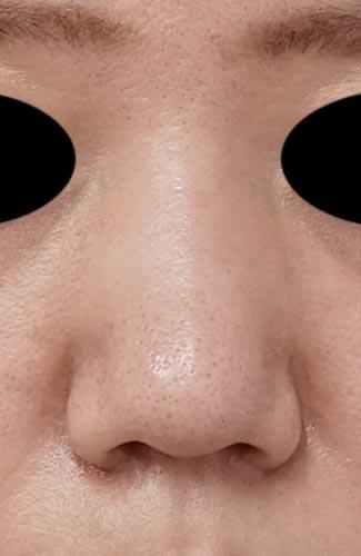 鼻尖縮小、鼻翼縮小(内側法+外側法) 6ヶ月後のAfterの写真