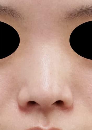 鼻尖縮小、軟骨移植、I型プロテーゼ 3ヶ月後 正面のBefore写真