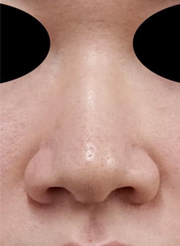 小鼻縮小(内側法+外側法) 5日後 正面のBefore写真