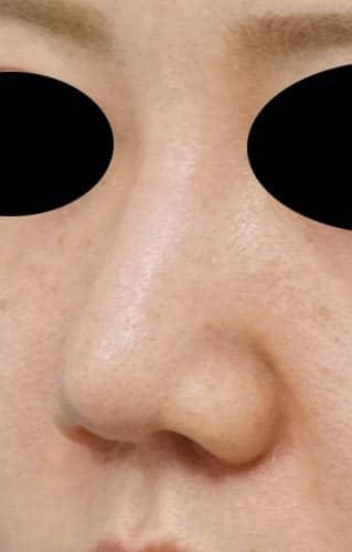 鼻尖縮小、鼻中隔延長、鼻柱基部下降、I型プロテーゼ 3ヶ月後 左斜めのAfterの写真