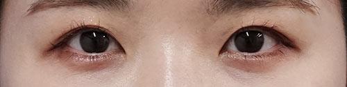 涙袋ヒアルロン酸 1週間後のAfterの写真