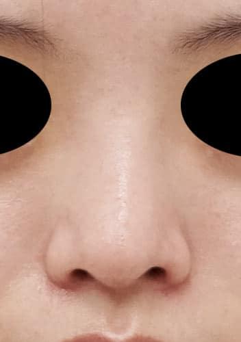 鼻尖縮小、軟骨移植、I型プロテーゼ 3ヶ月後 正面のAfterの写真