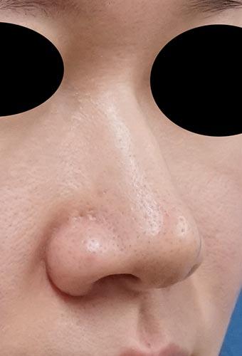 小鼻縮小(内側法+外側法) 5日後 右斜めのBefore写真