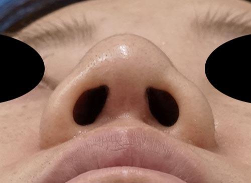 鼻尖縮小、鼻中隔延長、鼻柱基部下降、I型プロテーゼ 3ヶ月後 下からのAfterの写真