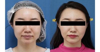 小顔脂肪吸引(ホホ・アゴ下・ほうれい線上) 半年後