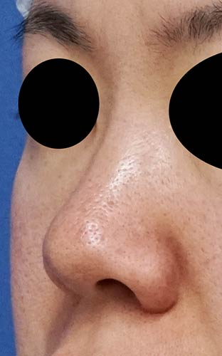 鼻尖縮小、軟骨移植、I型プロテーゼ 左斜め 手術前