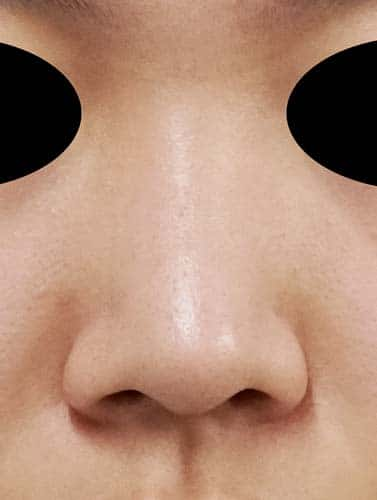 鼻翼縮小(内側+外側) 1ヶ月後 正面のBefore写真