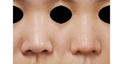 鼻翼縮小(内側+外側) 1ヶ月後