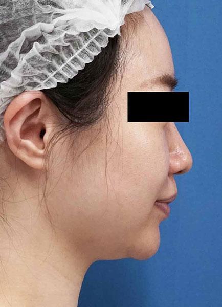 小顔脂肪吸引(ホホ・アゴ下・ほうれい線上) 半年後 右側面のBefore写真