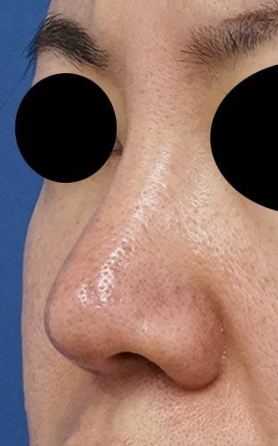 鼻尖縮小、軟骨移植、I型プロテーゼ 左斜め 3ヶ月後