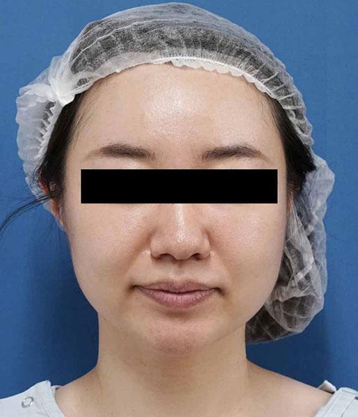 小顔脂肪吸引(ホホ・アゴ下・ほうれい線上) 半年後 正面のBefore写真