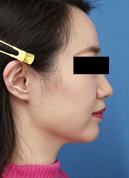 小顔脂肪吸引(ホホ・アゴ下・ほうれい線上) 半年後 右側面のAfterの写真