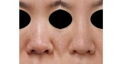 鼻尖縮小、軟骨移植、I型プロテーゼ 3ヶ月後