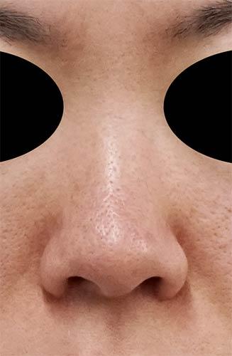 鼻尖縮小、軟骨移植、I型プロテーゼ 正面 手術前