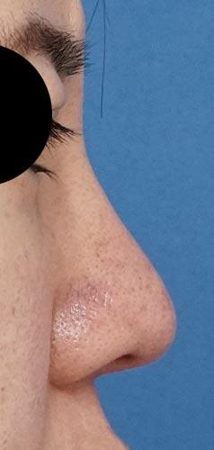 鼻尖縮小、軟骨移植、I型プロテーゼ 右側面 3ヶ月後
