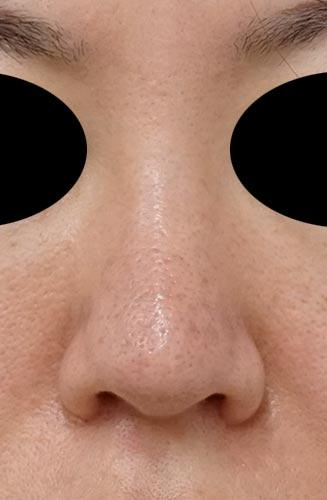 鼻尖縮小、軟骨移植、I型プロテーゼ 正面 3ヶ月後