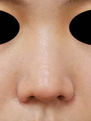 鼻翼縮小(内側+外側) 1ヶ月後 正面のAfterの写真