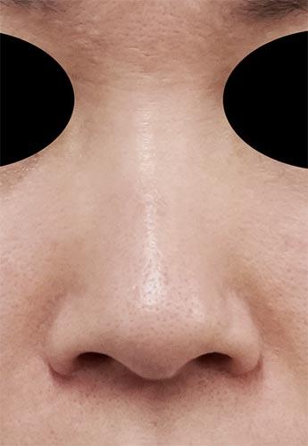 鼻尖縮小、小鼻縮小(内側法、Flap法)(他院修正) 3ヶ月後 正面のBefore写真