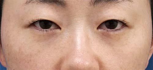他院修正、目の下脂肪取り+コンデンス脂肪注入 3ヶ月後のBefore写真