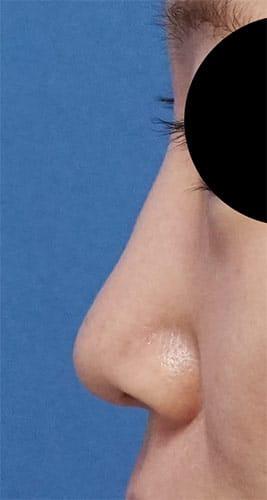 鼻尖縮小(他院修正)、軟骨移植、ストラット、I型プロテーゼ 手術前  左側面