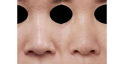 鼻尖縮小、小鼻縮小(内側法、Flap法)(他院修正) 3ヶ月後