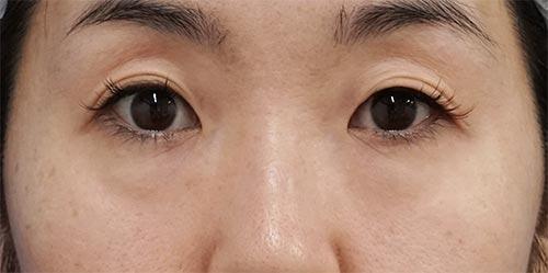 目の下脂肪取り、コンデンス脂肪注入 3ヶ月後のBefore写真