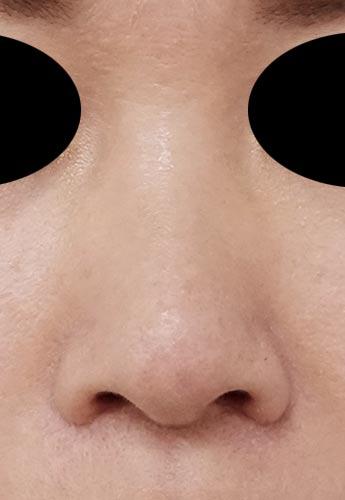 鼻尖縮小、小鼻縮小(内側法、Flap法)(他院修正) 3ヶ月後 正面のAfterの写真