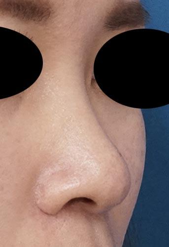 鼻尖縮小、小鼻縮小(内側法、Flap法)(他院修正) 3ヶ月後 右斜めのAfterの写真