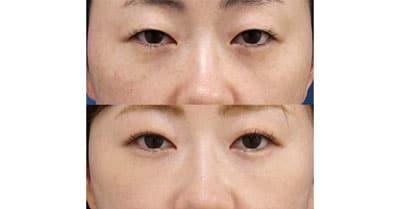 他院修正、目の下脂肪取り+コンデンス脂肪注入 3ヶ月後