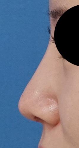 鼻尖縮小(他院修正)、軟骨移植、ストラット、I型プロテーゼ 3ヶ月後 左側面