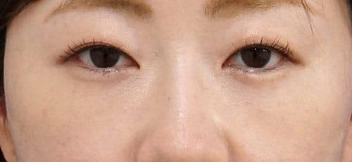他院修正、目の下脂肪取り+コンデンス脂肪注入 3ヶ月後のAfterの写真