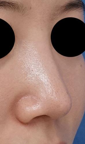 鼻尖縮小(他院修正)、軟骨移植、ストラット、I型プロテーゼ 3ヶ月後 右斜め