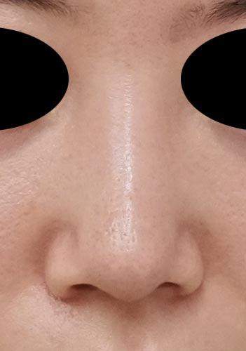 鼻尖縮小(他院修正)、軟骨移植、ストラット、I型プロテーゼ 3ヶ月後 正面