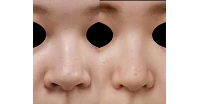 鼻翼縮小(内側+外側)、鼻尖縮小 3ヶ月後