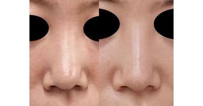 鼻尖縮小(他院修正)、軟骨移植、ストラット、I型プロテーゼ 3ヶ月後