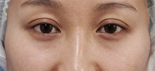 目の下の脂肪取り、コンデンス脂肪注入(目の下) 半年後のBefore写真