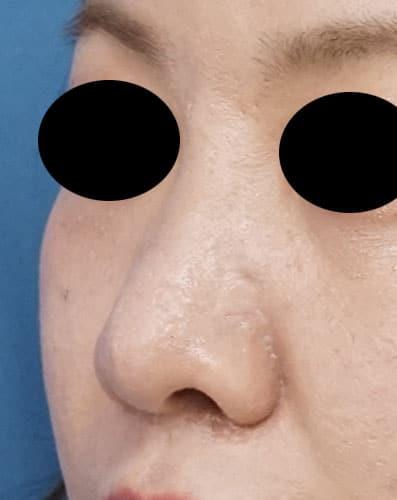鼻尖縮小、鼻孔縁延長 6ヶ月後 左斜めのAfterの写真