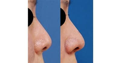 鼻尖縮小、軟骨移植 6ヶ月後