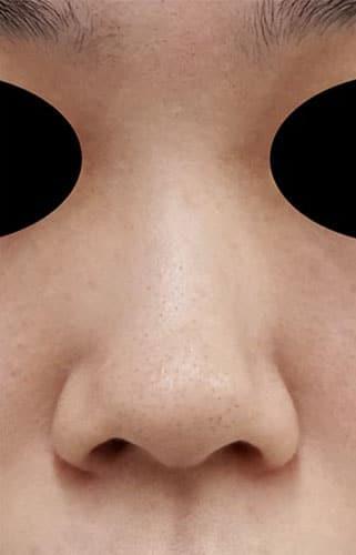 鼻翼縮小(内側+外側) 3ヶ月後 正面のBefore写真