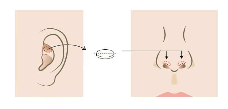 鼻の穴を目立ちにくくする鼻孔縁延長のイラスト