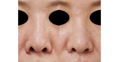 鼻尖縮小、鼻孔縁延長 6ヶ月後