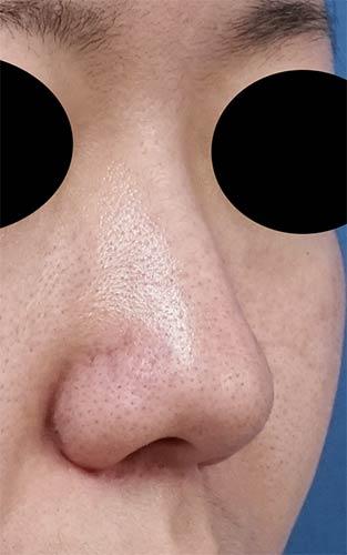 鼻尖縮小、軟骨移植 1ヶ月後 右斜めのBefore写真