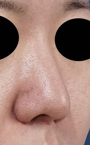 鼻尖縮小、軟骨移植 1ヶ月後 右斜めのAfterの写真