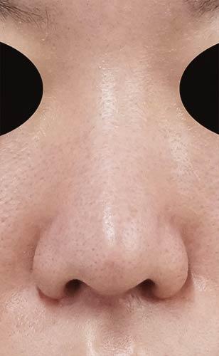 鼻尖縮小、軟骨移植 1ヶ月後 正面のAfterの写真