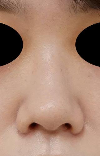 鼻翼縮小(内側+外側) 3ヶ月後 正面のAfterの写真